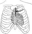 Trendelenburg-Op. Lungenembolie Titel.jpg