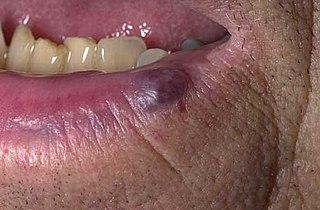 Venous lake Medical condition