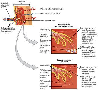Hemolytic disease of the newborn Fetal and neonatal alloimmune blood condition