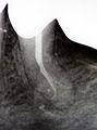 2012-10 PD Wurzelfüllung Delta an der Wurzelspitze IMG 6899 Vergrößerung.jpg