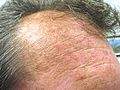 Actinic keratoses on forehead.JPG