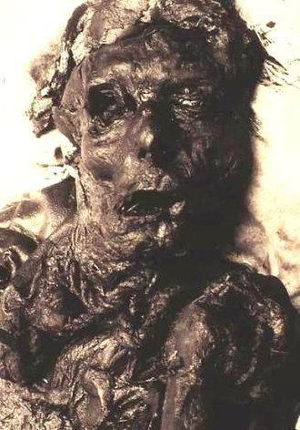 Borremose bodies - The Borremose Man around the time of his discovery
