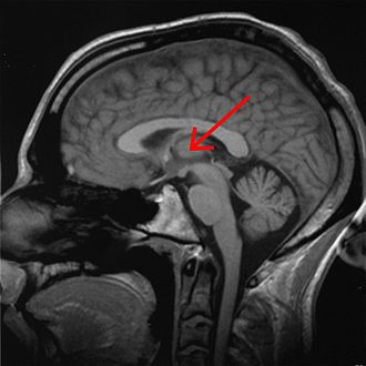Effects of sleep deprivation on cognitive performance -  Thalamus.