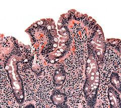 Biopsja jelita cienkiego ukazująca celiakię – zanik kosmków, przerost krypt i naciekanie limfocytów w kryptach
