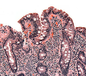 Biopsy of small bowel showing coeliac disease ...