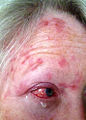Day07 shingles or Herpes Zoster Virus attacking forehead and eye.jpg