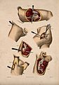 Diagrams illustrating cross-sections through a leg and remov Wellcome V0016840ER.jpg