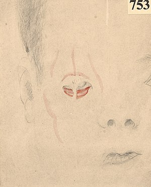 Face of a boy who had ectropion of the right eyelids Wellcome L0061867.jpg