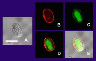 Giardia lamblia - This picture shows multiple views of a single Giardia lamblia (intestinalis) cyst as imaged at different instrument settings by confocal microscopy. Bar = 10 micrometers (A) is the cyst imaged by transmission (differential interference contrast), only. (B) is the cyst wall selectively imaged through use of fluorescent-labelled (TRITC) antibody that is cyst-wall specific. (C) is the cyst imaged through use of carboxy fluorescein diacetate, a viability stain. (D) is a composite image of (B) and (C). (E) is a composite image of (A), (B), and (C).