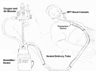 Heated humidified high-flow therapy