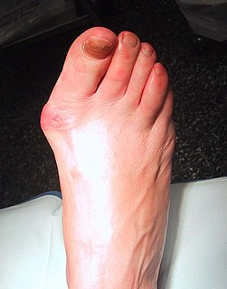 deformity characterized by lateral deviation of the great toe