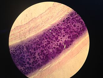 Histology - Sample of a trachea coloured with hematoxylin and eosin
