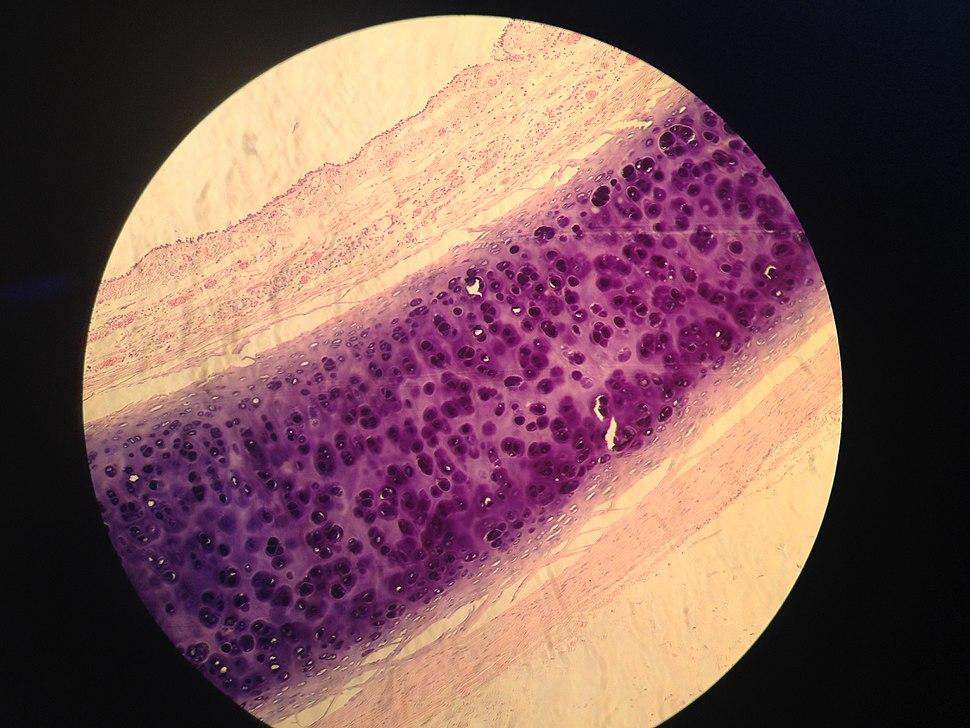 Histological sample of Trachea obtained at %22Instituto Nacional de Cardiolog%C3%ADa Ignacio A. Ch%C3%A1vez%22