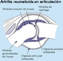 artritis reumatoide juvenil ges