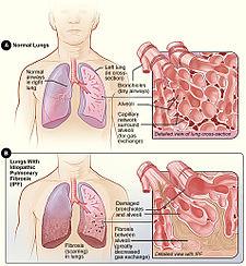 Obrázek A ukazuje zdravý plicní  parenchym. Na obrázku B vidíme fibrózu v parenchymu a snížení počtu alveolů