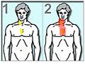 LymphomeHodgkinRadiotherapie2.jpg