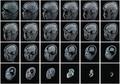 MRI.png