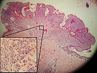 Micrograph of an intradermal melanocytic nevus.jpg