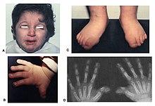 De taybi pdf rubinstein sindrome