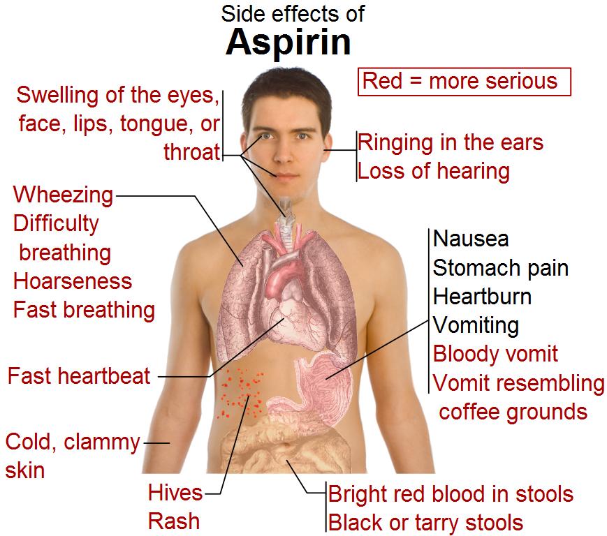 Side effects of aspirin