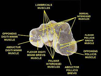 Abductor digiti minimi muscle of hand - Image: Slide 1MAI