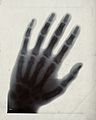 The bones of a hand, viewed through x-ray. Photoprint from r Wellcome V0029530.jpg