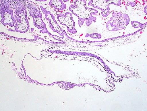 Trilaminar-human-embryo