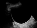Ultrasound Scan ND 151101 1515520 cr.png