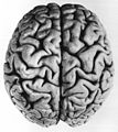 02 1 facies dorsalis cerebri.jpg