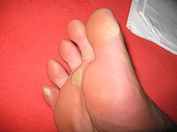 4021 - Zermatt - Feet after hiking.JPG