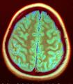 Brain MRI 142044 rgbca.png