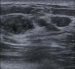 Breast US Fibroadenoma 0531092850156 Nevit.jpg