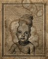 Child with two skulls joined together at the vertex. Engravi Wellcome V0007870EL.jpg