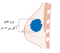 Diagram showing stage T3 breast cancer CRUK 259-ar.png