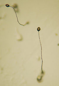 Dictyostelium Fruiting Bodies.JPG