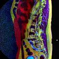 LSV MRI spondylolisthesis T1W T2W STIR 03.jpg
