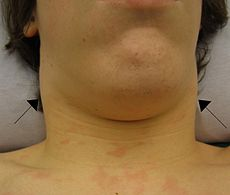 Lymphadanopathy.JPG