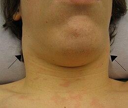 Linfoadenopatia