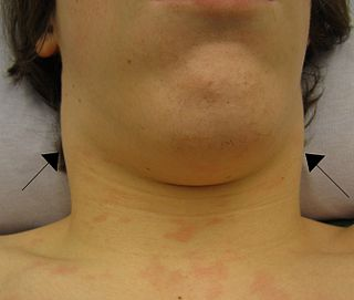 Lymphadenopathy disorder of lymph nodes