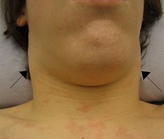 Cervical lymphadenopathy - Cervical lymphadenopathy in an individual with infectious mononucleosis