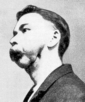 Phossy jaw - A match factory worker with phossy jaw
