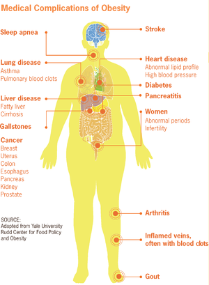 Health at Every Size - Diagram of the health effects of obesity, from the US CDC