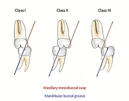 Occlusion (dentistry) - Wikiwand