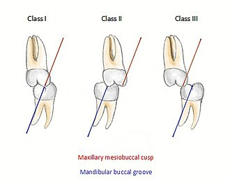 Occlusion (dentistry) - Molar relationship classification, observed when locating the mesial buccal cusp of the maxillary first molar and buccal groove of the mandibular first molar. (Institute of Dentistry, Aberdeen University)
