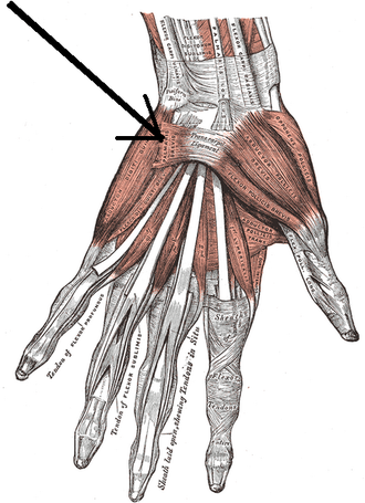 Palmaris brevis muscle - The muscles of the left hand. Palmar surface (palmaris brevis visible at center left).