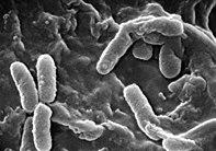Micrografía electrónica de barrido de la bacteria Pseudomonas aeruginosa, asociada con frecuencia a las infecciones pulmonares graves que complican la FQ.