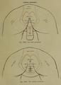 Regiones corpores humani - page 4 - regiones perineales.png