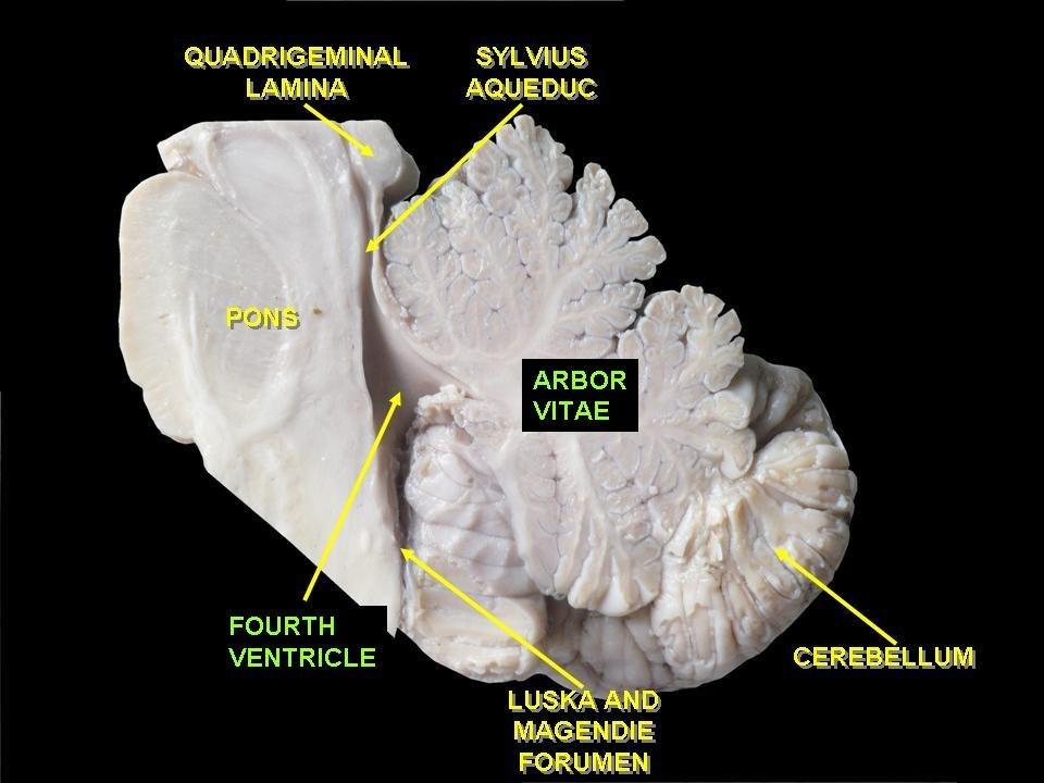 Arbor vitae (anatomy) - Howling Pixel