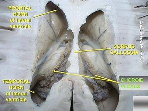 Choroid plexus - Image: Slide 3oo