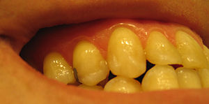 Exampled of stippled gingiva,